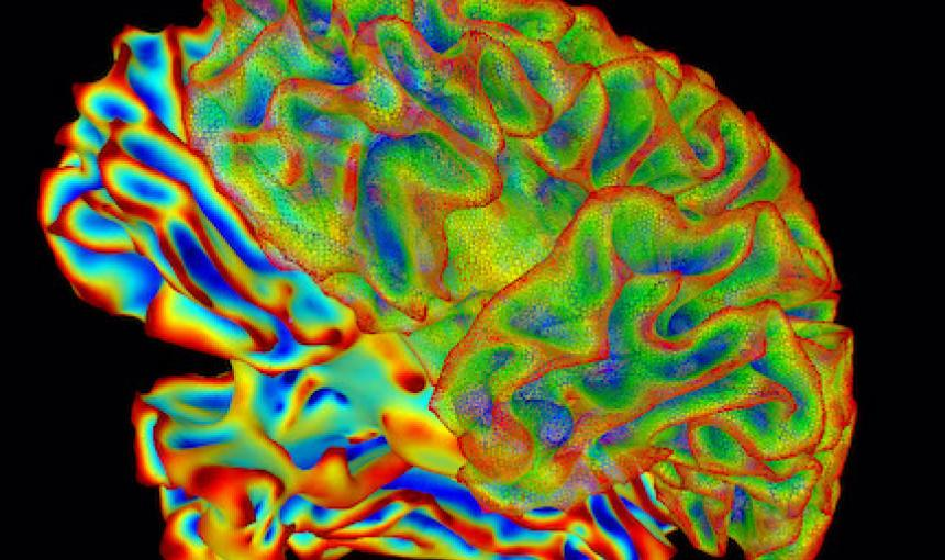 A colorful brain scan