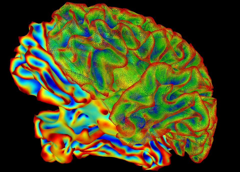 A colorful brain scan.